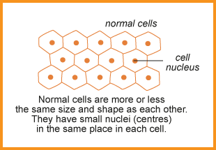 Normal cells are more or less the same shape as each other. They have small nuclei (centres) in the same place in each cell.